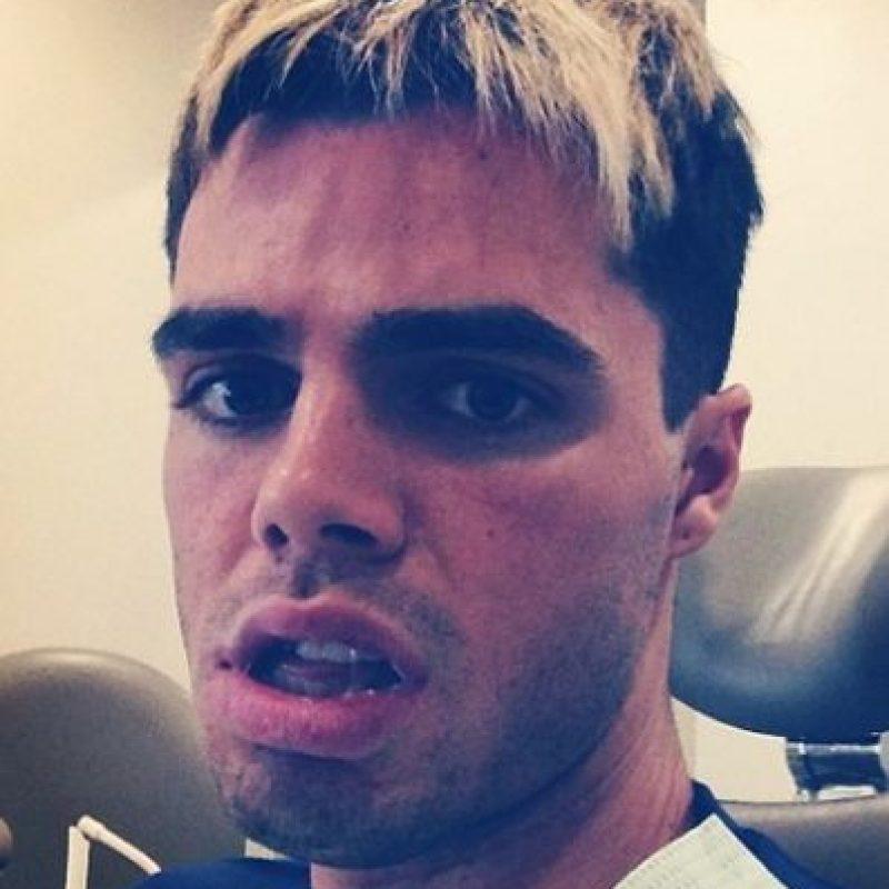 Tras varias cirugías, el joven actor juró no volverse a realizar una más. Sin embargo, se sentía inseguro con su apariencia. Foto:Instagram/reidoing