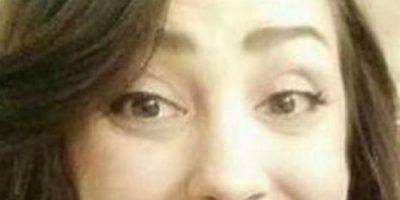 """Fotos: Mujer quedó """"deforme"""" por solo tinturarse el pelo"""