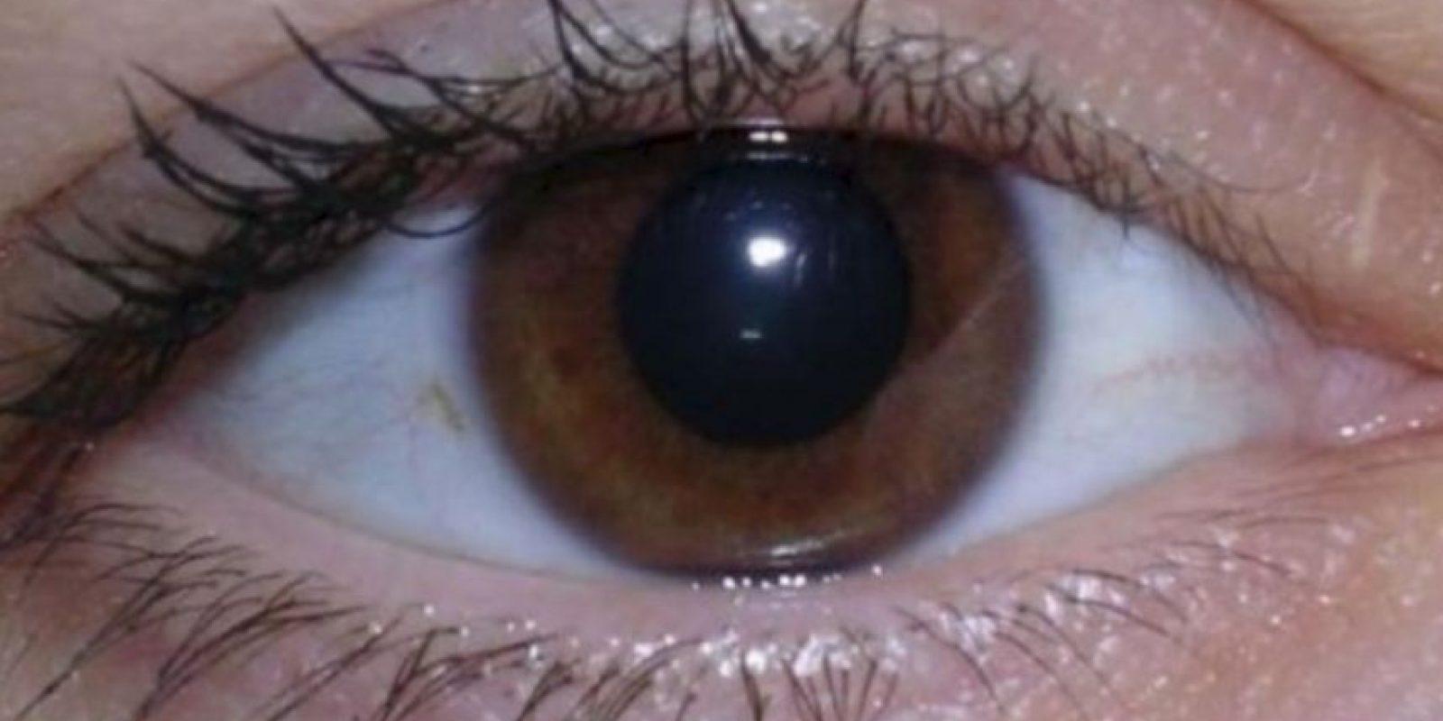 2. Bolsas debajo de los ojos Foto:vía Pinterest