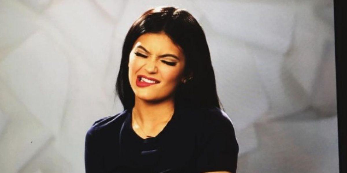 Los labios de Kylie Jenner ya no lucen tan