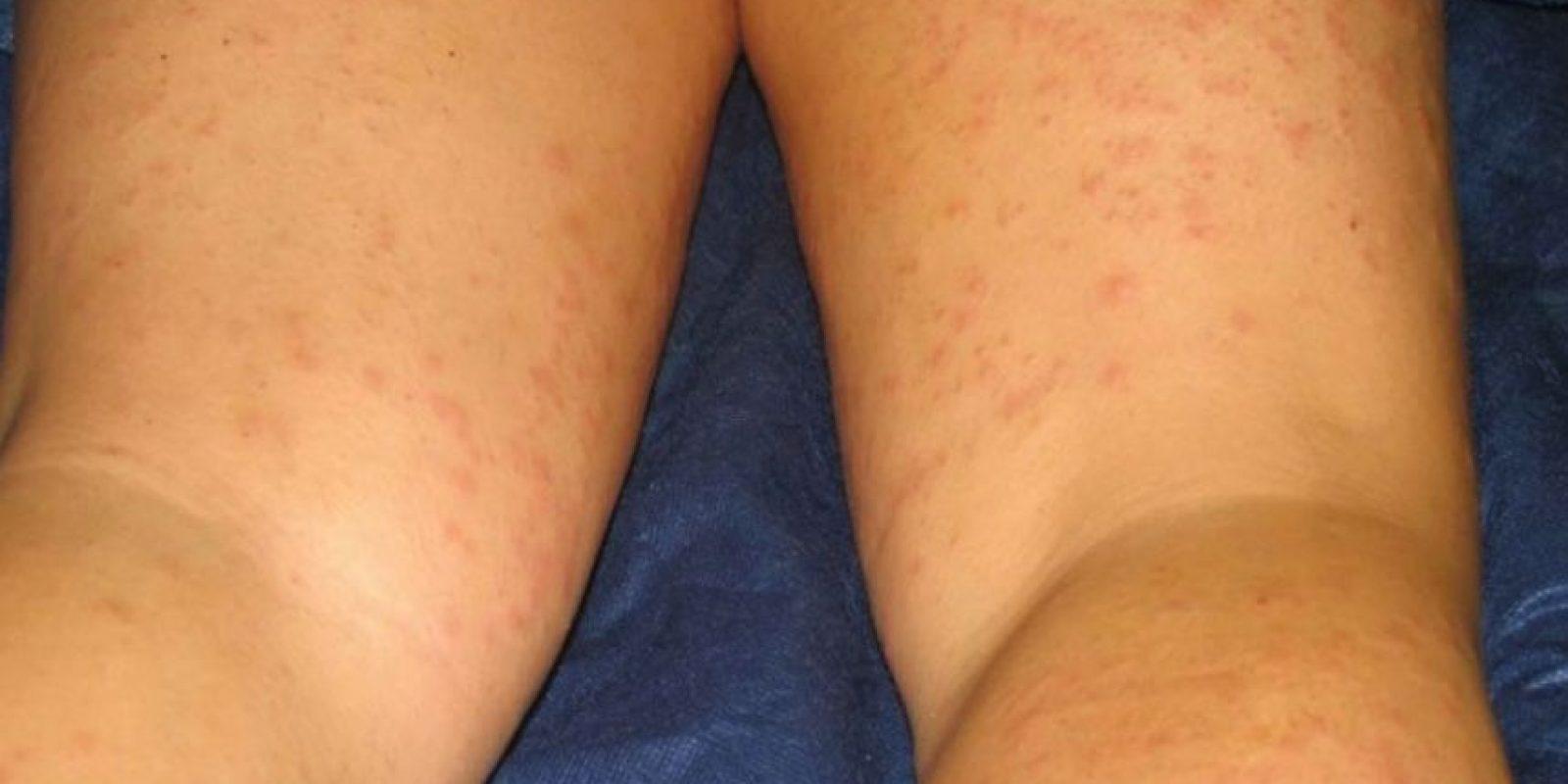 6. Esta chica resultó alérgica a un componente de su crema para depilar. Foto:ía Instagram/#DepilacionFail