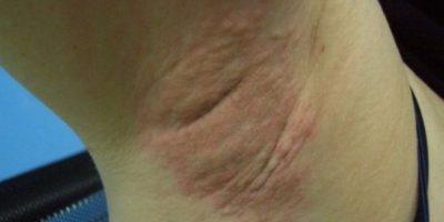7. Ella se depiló y las navajas no estaban en buenas condiciones. Obtuvo una fuerte infección. Foto:ía Instagram/#DepilacionFail