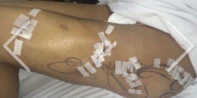 La brasileña confesó que se ha sometido al menos a nueve cirugías plásticas en los últimos cinco años. Foto:Vía Twitter