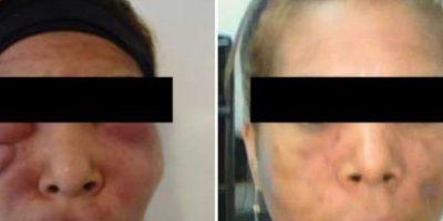 16. Esta mujer abusó de los biopolímeros. Foto:Tumblr