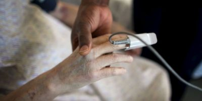 Su pene quedó prácticamente cubierto por la hernia. Foto:Getty Images