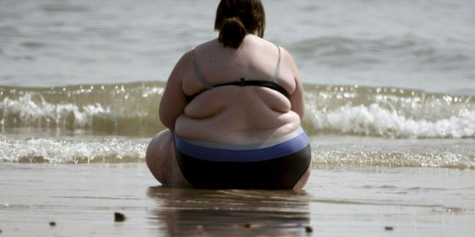 Esteatosis hepática (hígado graso). Las personas obesas tienden a padecer esta enfemedad, ya que el exceso de grasa tiende a ocupar y cubrir a las vísceras. Foto:Getty Images