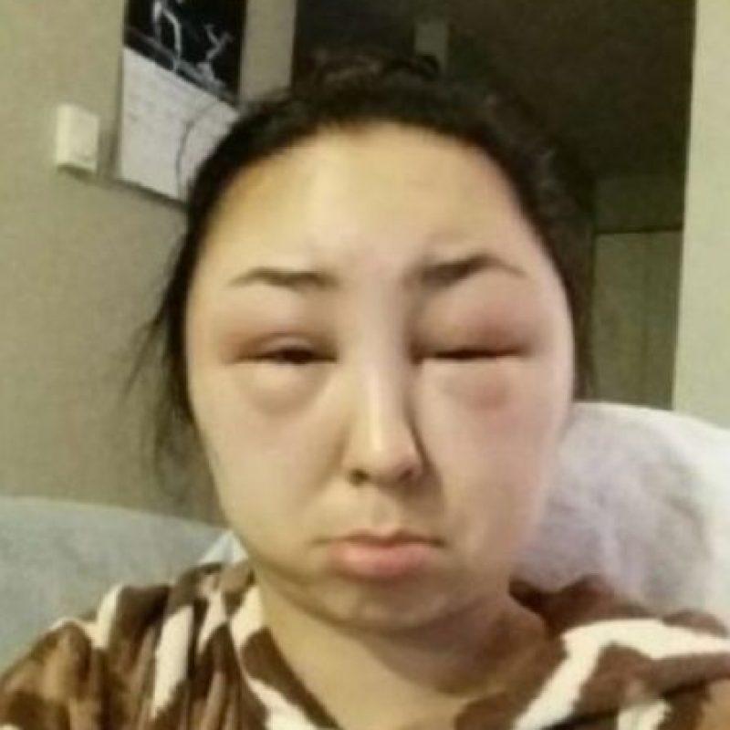 Miren cómo quedó su rostro. Foto:Reddit