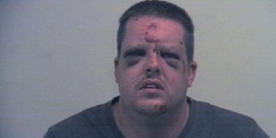 Mujer deja gravemente herido al hombre que intentó abusar de ella