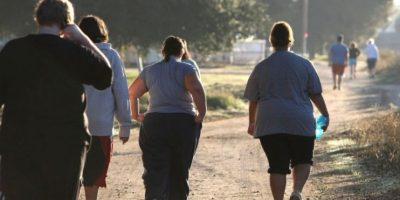 Venas varicosas. Ya que el sobrepeso ejerce mayor presión en las venas, esto sin duda origina las várices. Foto:vía Getty Images