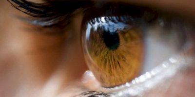 1. Las ojeras no solo son manchas oscuras alrededor de los ojos. Foto:Pixabay