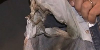 El usuario estadounidense dijo que repentinamente se prendió fuego en su pantalón. Foto:vía ABC News