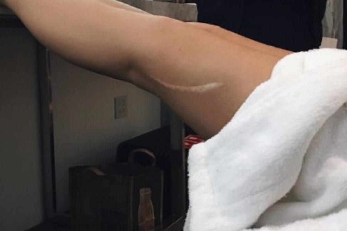 La joven presumió, muy orgullosa, la cicatriz que tiene en la pierna. Foto:vía instagram.com/kyliejenner