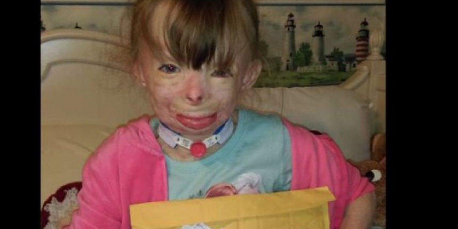 Ahora ella vive en Nueva York con su tía Liz Dolder, quien compro un árbol de Navidad donde planean colgar las cartas. Foto:Vía facebook.com/Schenectadyssupersurvivor