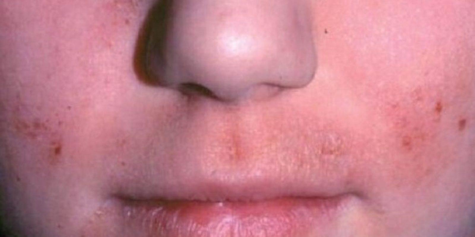 """4. Otra obsecuencia de usar maquillaje viejo es que incluso, podría manchar la piel, compartió la """"Revista Buena Salud"""" de España. Foto:Pinterest"""