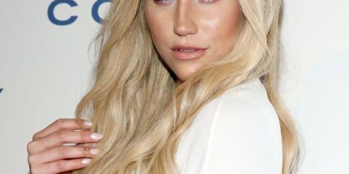 ¿Qué le pasó? Kesha sorprende con un evidente aumento de labios