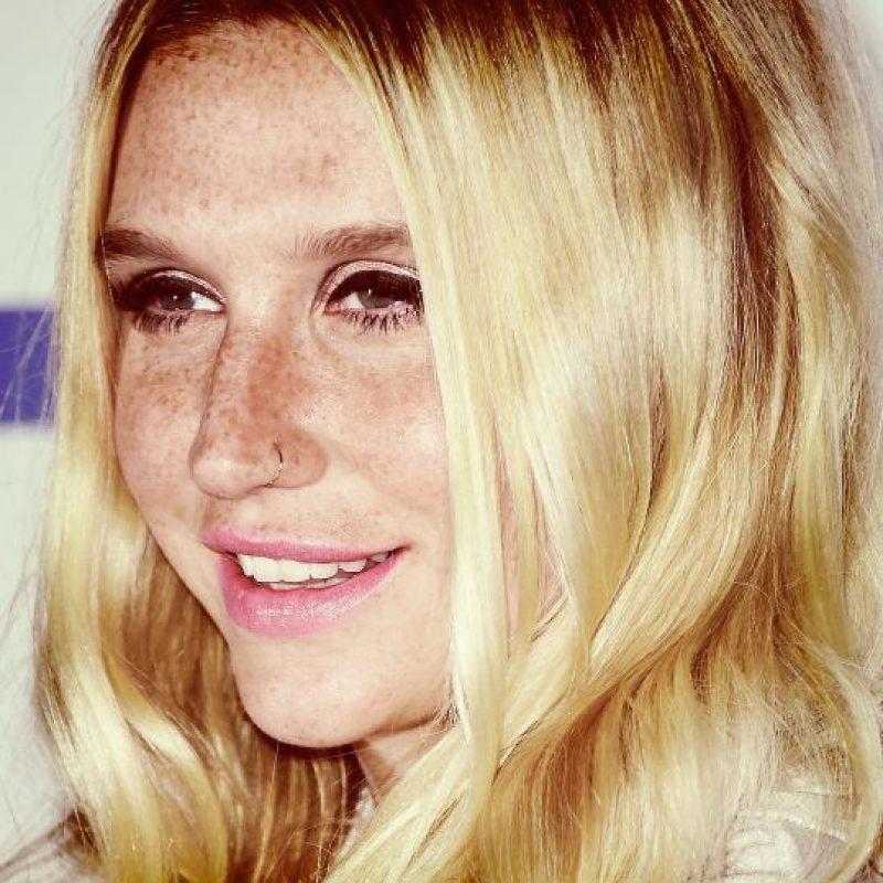 Así lucía el rostro de Kesha en septiembre de 2015 Foto:Getty Images