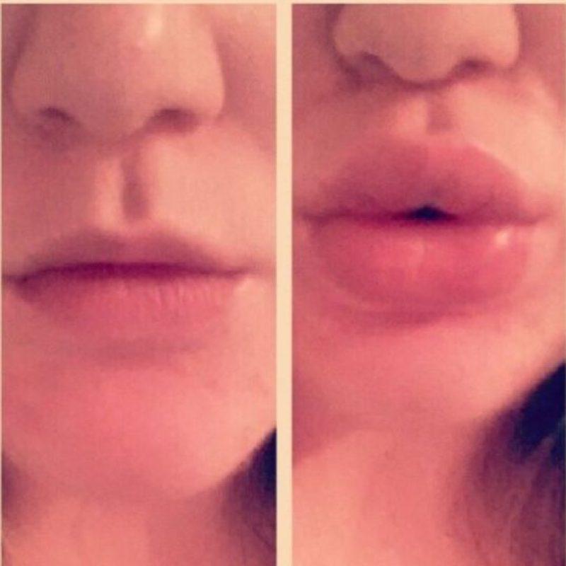Háganse rellenos labiales. Pero no traten de tener los labios de Kylie por otros métodos. Foto:vía Instagram
