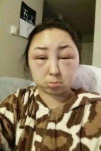 1. Recientemente les presentamos el caso de la amiga de la usuaria de Imgur, TheChosenGinger, quien mostró una terrible consecuencia luego de teñirse el cabello. Foto:Reddit