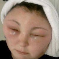 Sin embargo, tuvo que ser hospitalizada y se quedó ciega temporalmente debido a una reacción alérgica. Foto:Vía Youtube