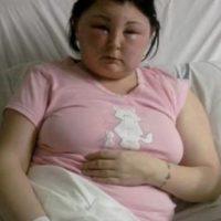 También sufrió una grave inflamación en rostro y cabeza. Foto:Vía Youtube