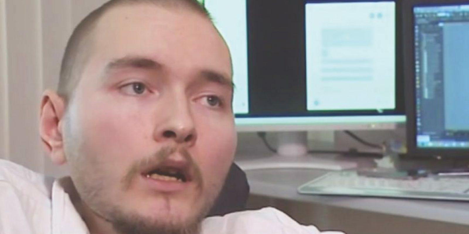 Valery Spiridonov se ofreció para ser preseleccionado para el primer trasplante de cabeza del mundo. Foto:Twitter
