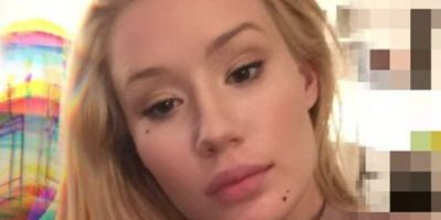 Fotos: El rostro de Iggy Azalea luce diferente, ¿abusó del bótox?