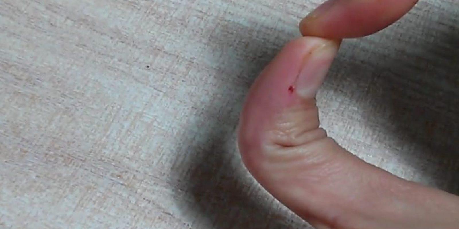 Edit: component Doblar el dedo pulgar hacia atrás. Foto:Vía Youtube
