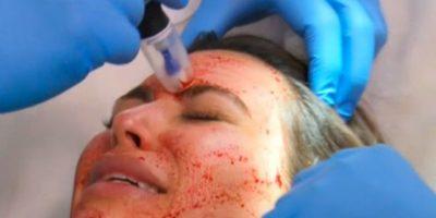 Consiste en separar el plasma de los glóbulos rojos, inyectarlo en la dermis y así aprovechar las plaquetas para lucir una piel más joven. Foto:E Entertainment