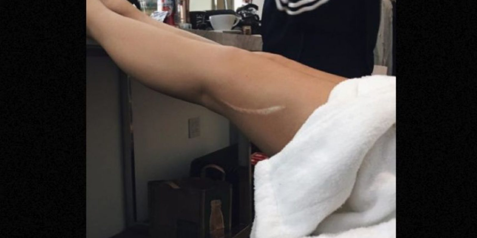 Kylie Jenner mostró esta herida. Foto:vía Instagram
