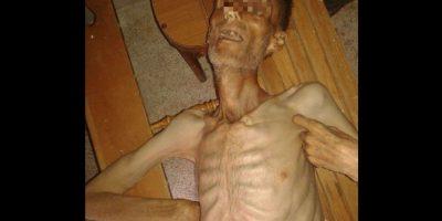 Madaya se ha convertido en un caso emblemático de la crisis. Foto:Vía Twitter