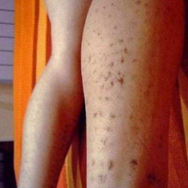 Mujer española sufrió fuertes quemaduras a causa de una depilación láser. Foto:Vía Instagram/#DepilacionFail