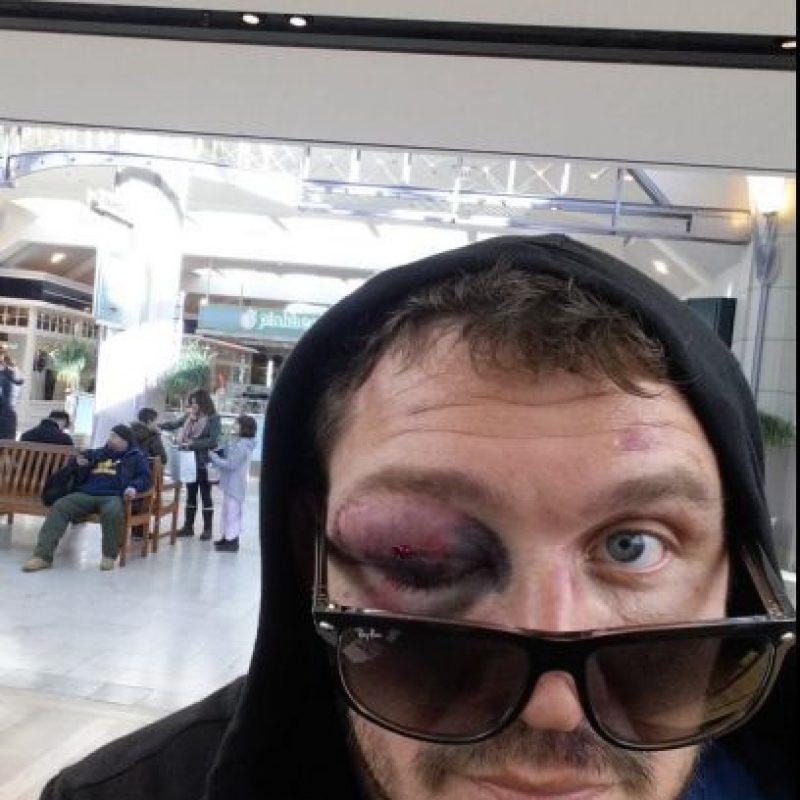 El propio Mitrione mostró las huellas de la batalla Foto:Vía twitter.com/mattmitrione