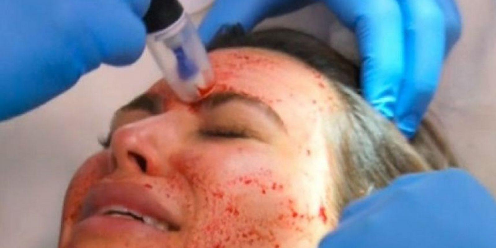 Consiste en separar el plasma de los glóbulos rojos, inyectarlo en la dermis y así aprovechar las plaquetas para lucir una piel más joven. Foto:vía E!