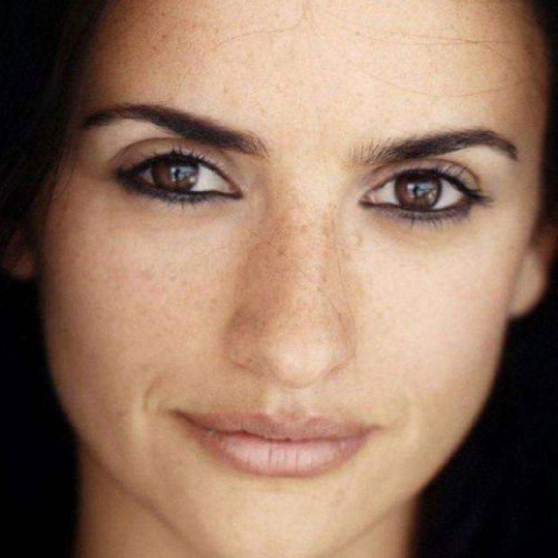 El estrabismo es la desviación de la línea visual de los ojos. Foto:Getty Images