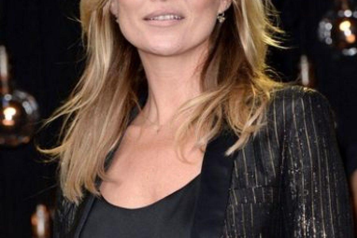 La supermodelo Kate Moss tiene estrabismo Foto:Getty Images
