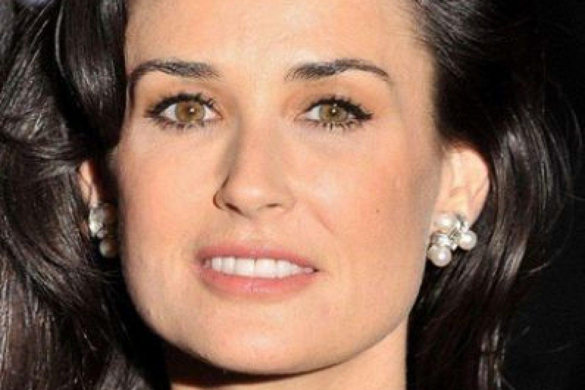 Demi More ambliopía Foto:Getty Images