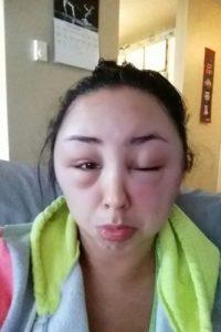 Su reacción alérgica fue única. Foto:vía Reddit