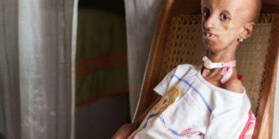 El drama de la niña de 14 años que vive en el cuerpo de una mujer de 90