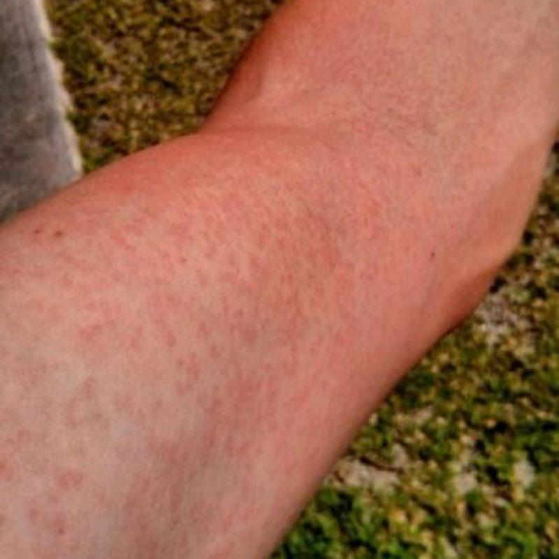 Ejemplos de erupciones en la piel, uno de los síntomas del virus zika Foto:Getty Images
