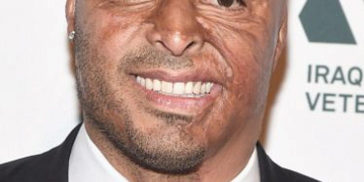 Fotos: Las 7 cicatrices más impresionantes de los famosos