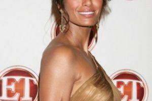 La modelo y presentadora india se accidentó y nunca corrigió su imagen, como recuerdo de ello. Foto:vía Getty Images