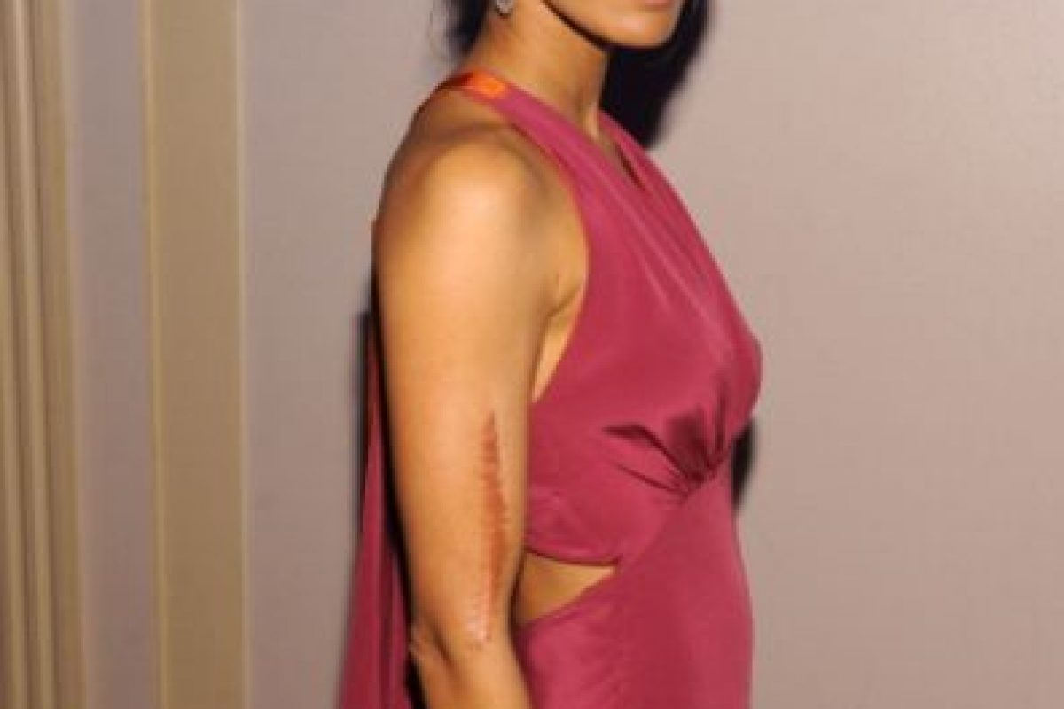 Padma Lakshmi tiene una cicatriz en su brazo. Foto:vía Getty Images
