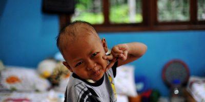 Rafli, un valiente pequeño de Indonesia, hace un gesto mientras es fotografiado en la Fundación de Niños con Cáncer de ese país. Foto:AFP
