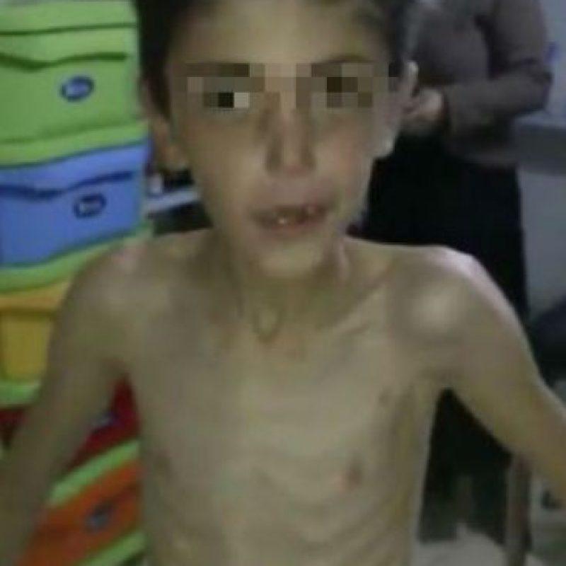 Médicos y socorristas en la ciudad siria Madaya, ubicada al noreste de Damasco, pidieron ayuda a las autoridades internacionales para salvar la vida de al menos 40 mil personas. Foto:vía AFP