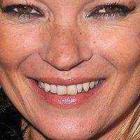 La particular sonrisa de Kate Moss hace parte de su encanto. Foto:vía Getty Images