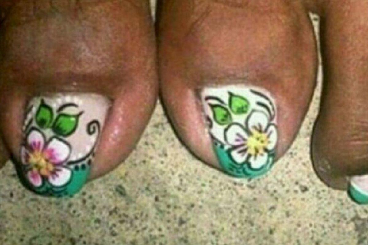El pie se ve sucio en muchos casos. Foto:vía NowayGirl