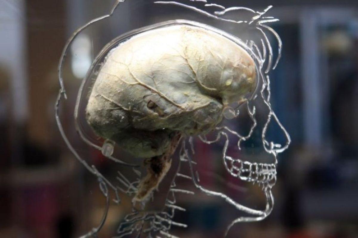 Las visiones y sonidos que no existen pueden ser generados por el hábito del cerebro de predecir lo que espera experimentar, llenando los vacíos que faltan en la realidad. Foto:Getty Images