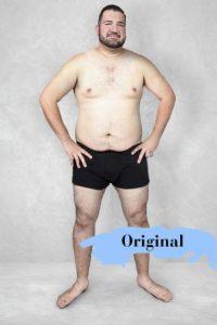 Así se ve el cuerpo original. Foto:Vía onlinedoctorsuperdrug.com