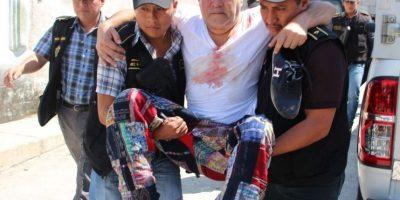 Policía libera a colombiano de secuestro, lo habían torturado