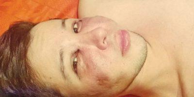 Intentó quitarse la vida por la depresión que le causó su apariencia Foto:Facebook Jersson Trujillo
